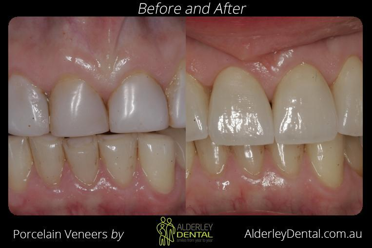 porcelain veneers before and after alderley qld