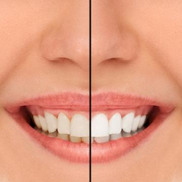 woman with teeth whitening before and after in alderley