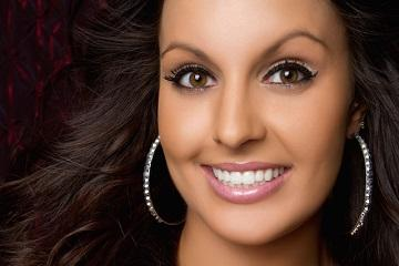 dental veneers in alderley qld