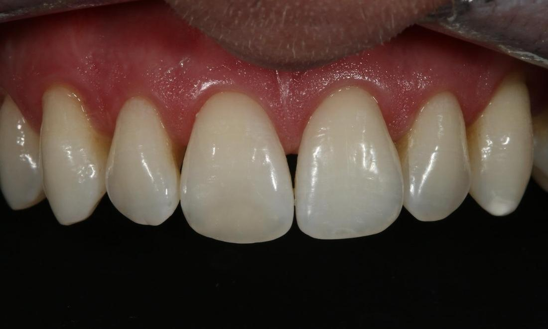 teeth whitening and tooth colored filling alderley qld
