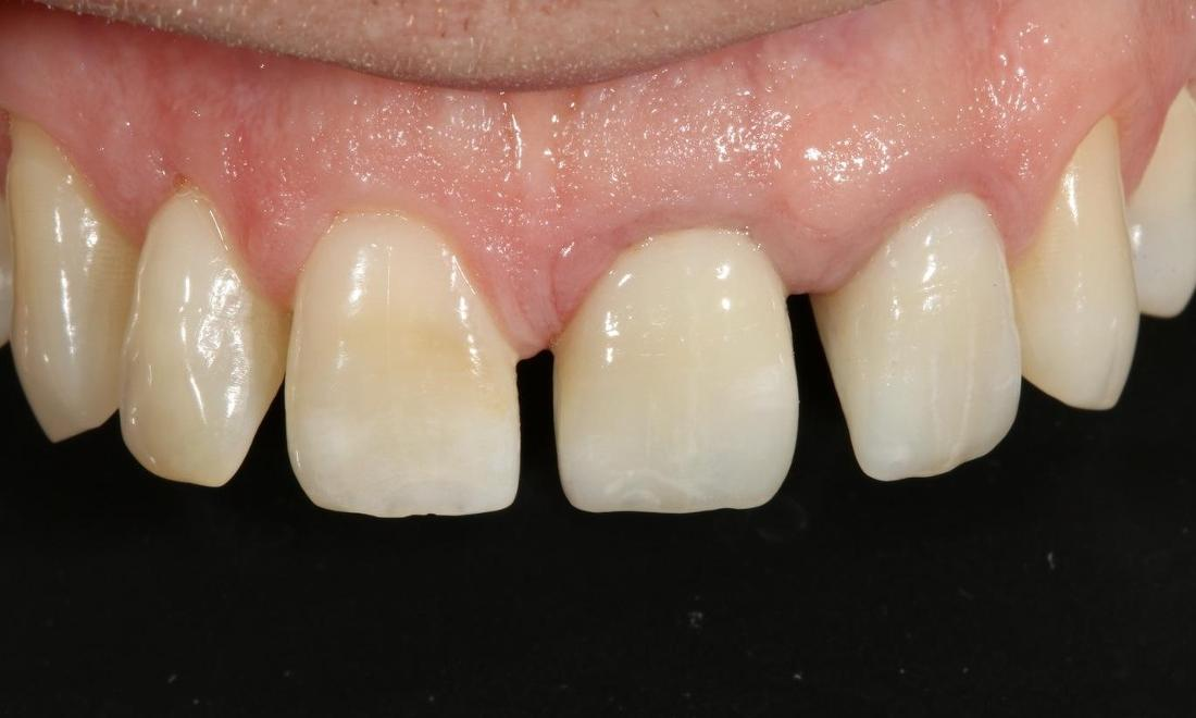ceramic crowns alderley qld