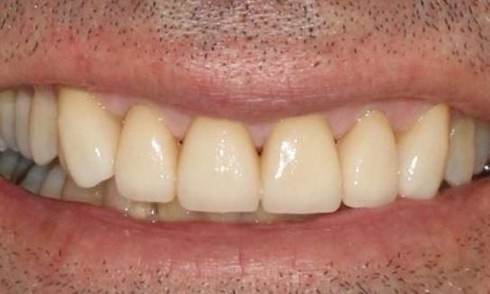 ceramic crown smile makeover alderley qld