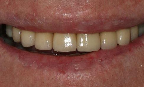 ceramic crowns to cover worn teeth alderley qld