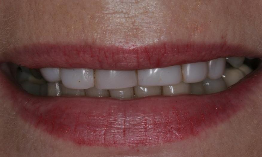 discolored teeth | before porcelain veneers alderley qld