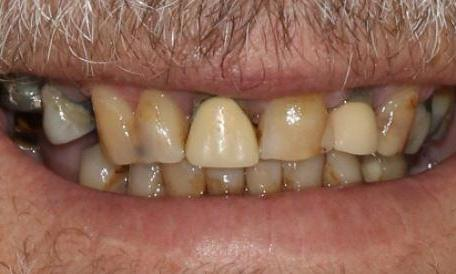 decayed rotted teeth | cosmetic dentist alderley qld