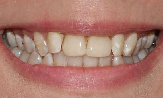 misaligned and yellowed teeth alderley qld