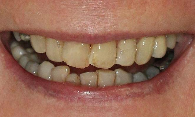 before picture of decayed teeth | smile design alderley qld