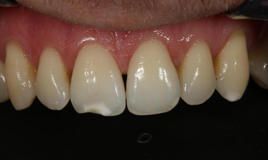 chip in tooth | tooth colored fillings alderley qld