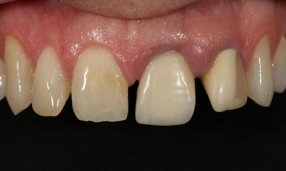 picture of discolored teeth | cosmetic dentistry alderley qld