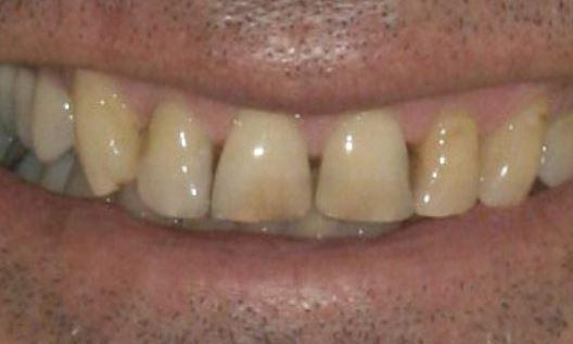 discolored teeth | ceramic crowns alderley qld