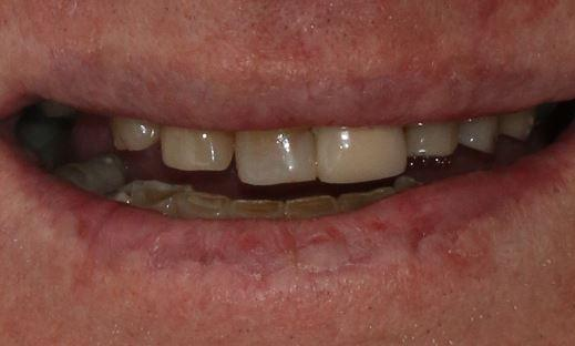worn down teeth alderley qld